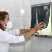 É necessário ficar atento aos sintomas da tuberculose para dar início ao tratamento e, com isso, interromper a contaminação das outras pessoasAgecom Bahia